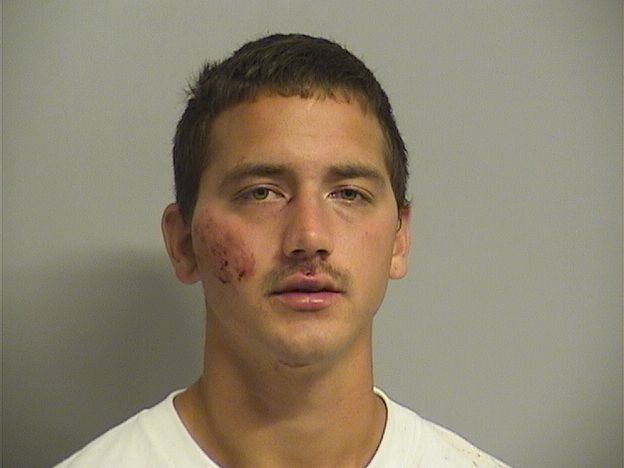 John Pinney, 25, appeared bruised after his arrest Monday night. He faces a long list of charges.