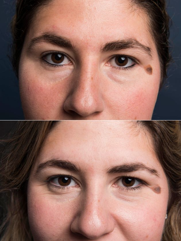 Top: Brows at the beginning. Bottom: After
