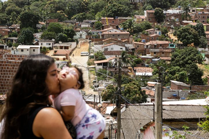 Cleane Stephanie with Maria Eduarda, only 11 months old, who has microcephaly caused by Zika virus. Olinda, Brazil,