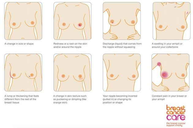 breast cancer symptoms may not include lump and women must learn, Human Body