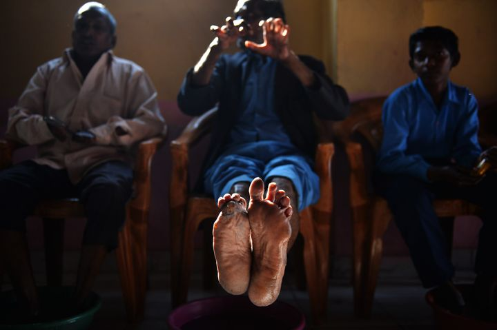 A cured leprosy patient shows his disfigured feet and hands in a leprosy colony in New Delhi, on March 11, 2015. The last dec
