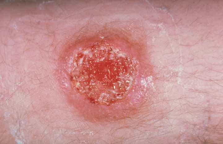 Leishmaniasis, caused by an intracellular protozoal parasite. The disease is transmitted by the bite of a sand fly.