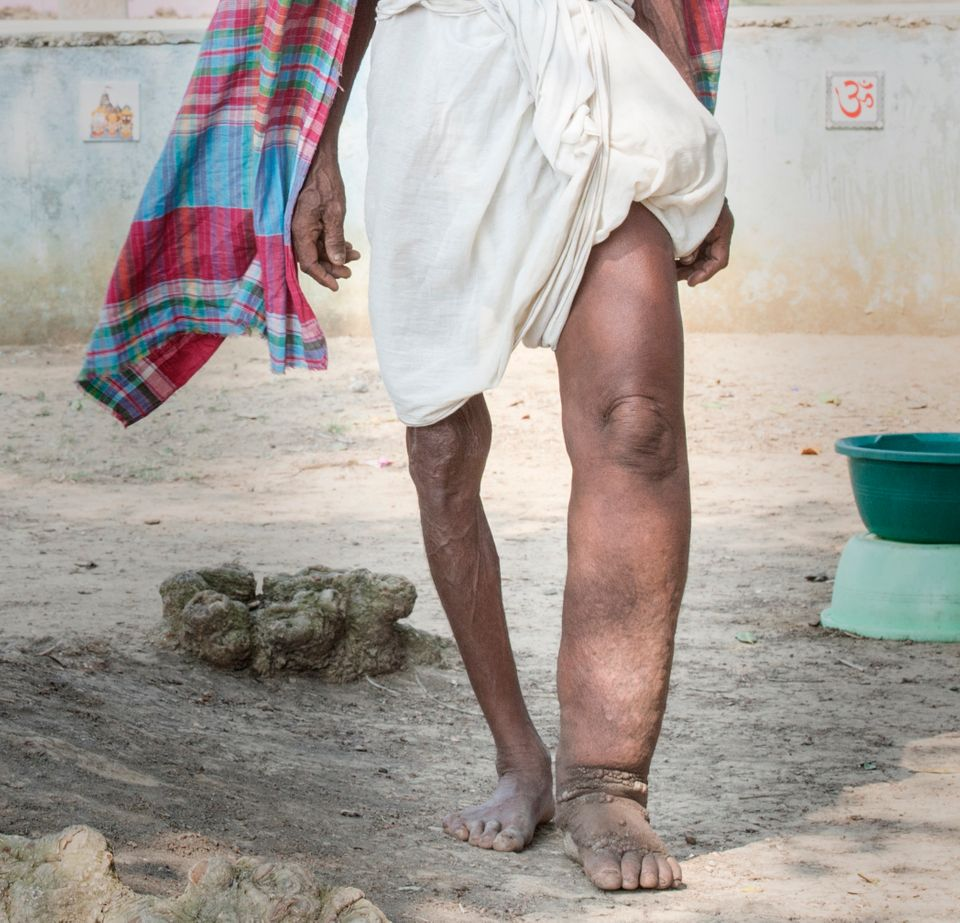 "Lymphatic filariasis, more commonly known as elephantiasis, is a <a href=""https://www.cdc.gov/parasites/lymphaticfilariasis/"""