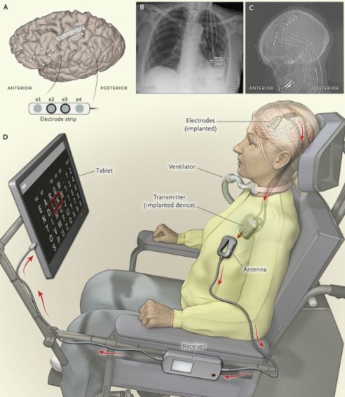 Paralysed Woman 'Locked In' Her Body Can Communicate Again After Brain
