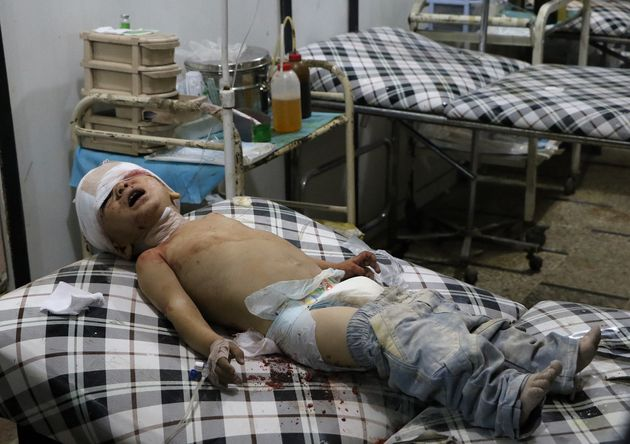 A wounded toddler waits to receive medical treatment following an airstrike over the civilian populated...