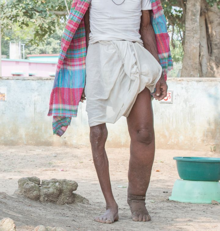 A man in India displaying symptoms oflymphatic filariasis, commonly known as elephantiasis, a neglected tropical diseas