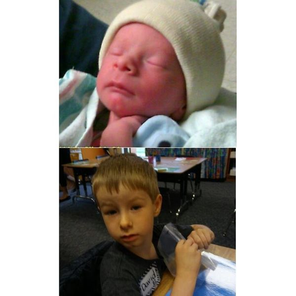 """David was born 6 weeks premature and is now 5 years old."""