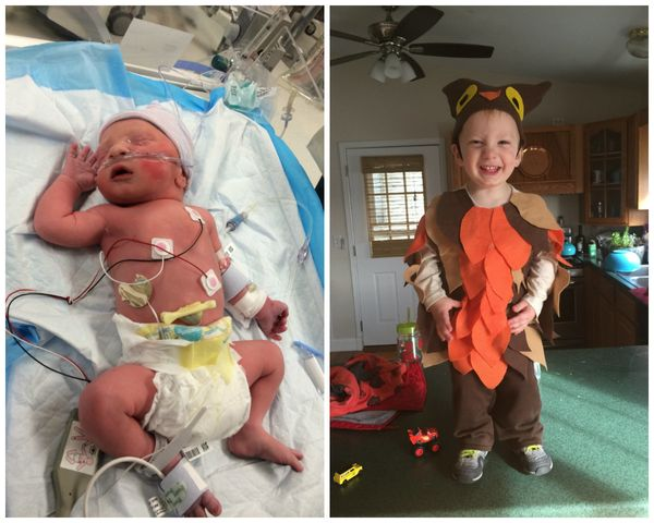 """This is Edwin, our little preemie. He was born at 35 weeks, three days. We had a traumatic birth with him stuck in the birth"