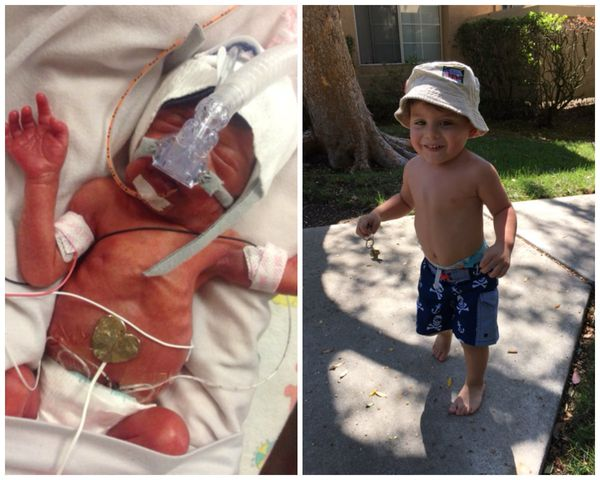 """I had my son Brayden at 27 weeks in 2014. He was 2 pounds, 13 ounces. He was in the NICU for four months and is now thriving"