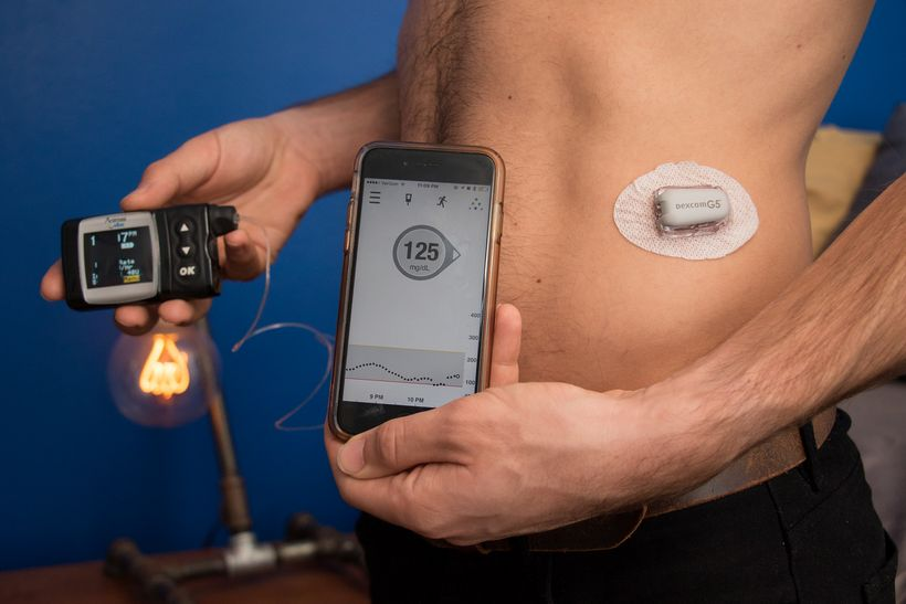 Picture shows my insulin pump, my cell phone which reads my blood sugar level via bluetooth, and my continuous glucose monito