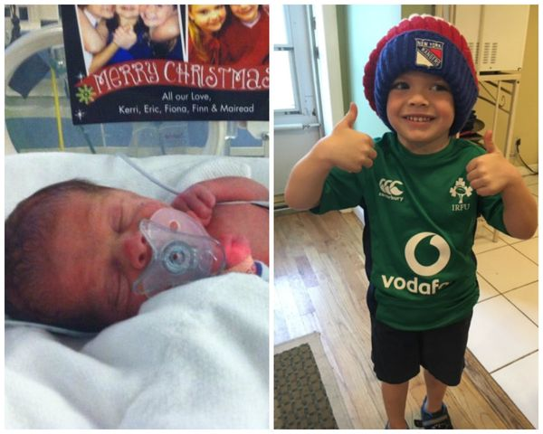 """Deaglan was born at 29 weeks on December 23, 2012. He weighed 3 pounds and was in the NICU for six weeks. He is baby brother"