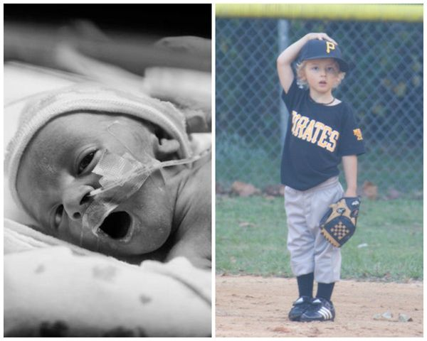 """Cooper, born at 31 weeks, is now 4. He was born weighing 3 pounds, 9 ounces and spent 28 days in the NICU."""