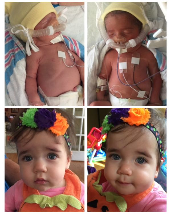 """My twin daughters, Emilia and Isabelle, were born at 32 weeks due to twin-to-twin transfusion syndrome. Although my preemies"