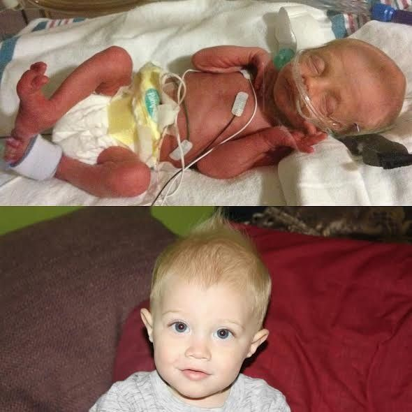"""My son Leo was born at 32 weeks, due to me getting preeclampsia. He weighed 3 pounds, 5 ounces and stayed in the NICU for si"