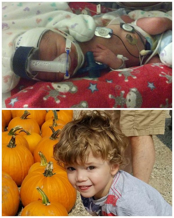 """This is Sammy. He was born at 34 weeks, and stayed in the NICU for 13 days. I (his mom) had preeclampsia with HELLP Syndrome"