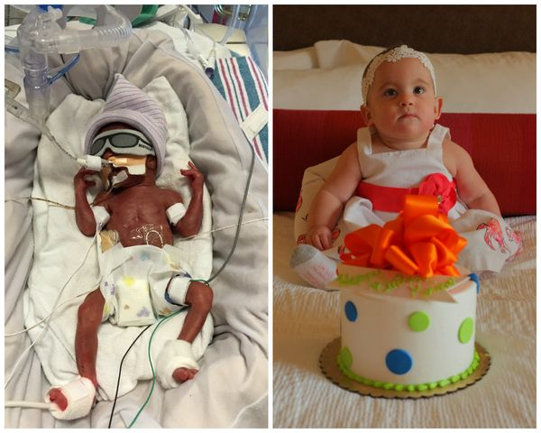"""These are pictures of my daughter Monica. She was born on November 3, 2015, at 24 weeks and three days, weighing 1 pound, 8"
