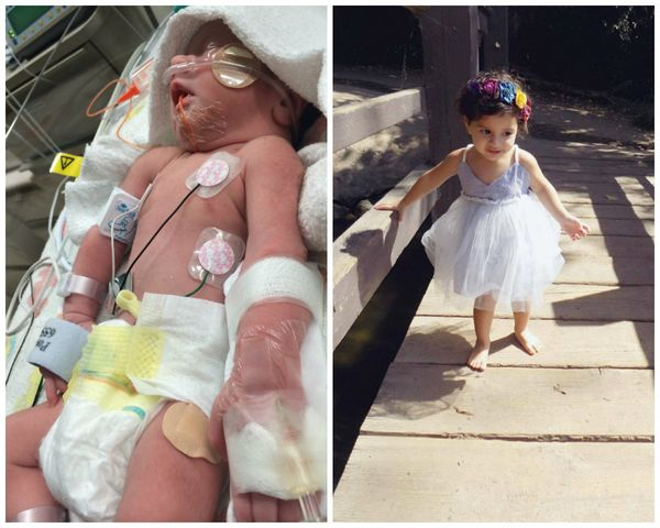 """Here is Scarlet. The first photo is her on August 21, 2014, born at 33 weeks, six days, weighing 4 pounds, 10 ounces. She sp"