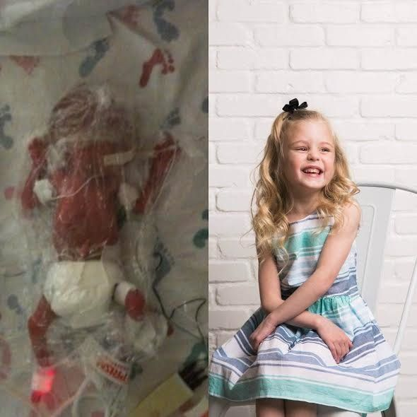 """My daughter was born at 25 weeks weighing less than a pound. She spent 140 long days in the NICU and came home with an NG tu"