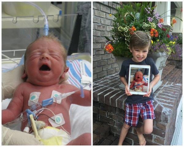 """These are photos of my son, Hill Barrow (now 7). When I was pregnant with Hill in 2009 (and had a 2-year-old daughter at hom"
