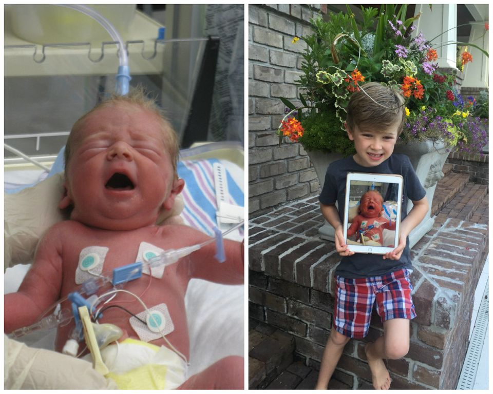Photos Of Premature Babies Then And Now Show Their Incredible