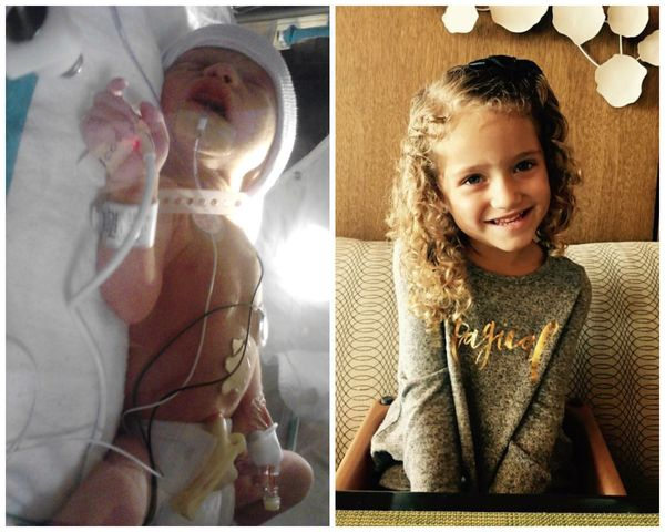 """My girl Kylie Ann was born at 32 weeks, weighing 3 pounds. I suffered from HELLP Syndrome and was in the ICU for nine days."
