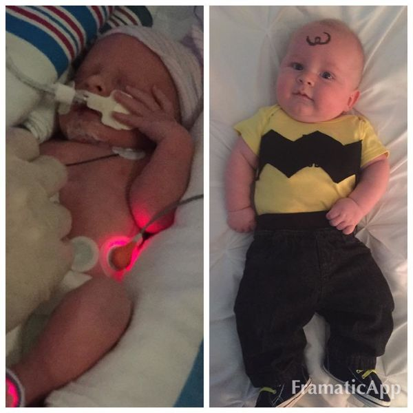 """Everett was 6 weeks premature, spent 12 days in the NICU, and is now thriving! He's 4 months old now. He's so cute, happy an"