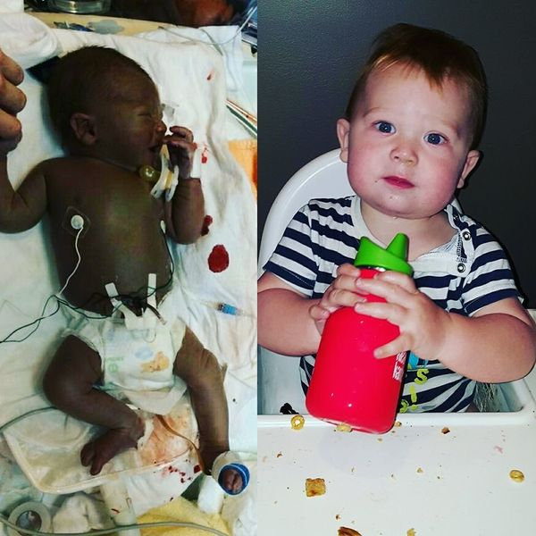 """This is Owen, born at 36 weeks. He had a rough go with hemolytic disease and biliary atresia. After multiple blood transfusi"