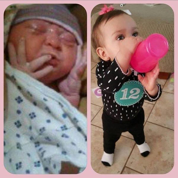 """Born at 36 weeks, stayed in the NICU for seven weeks, six days. Here she is (left picture) only minutes after she was born."