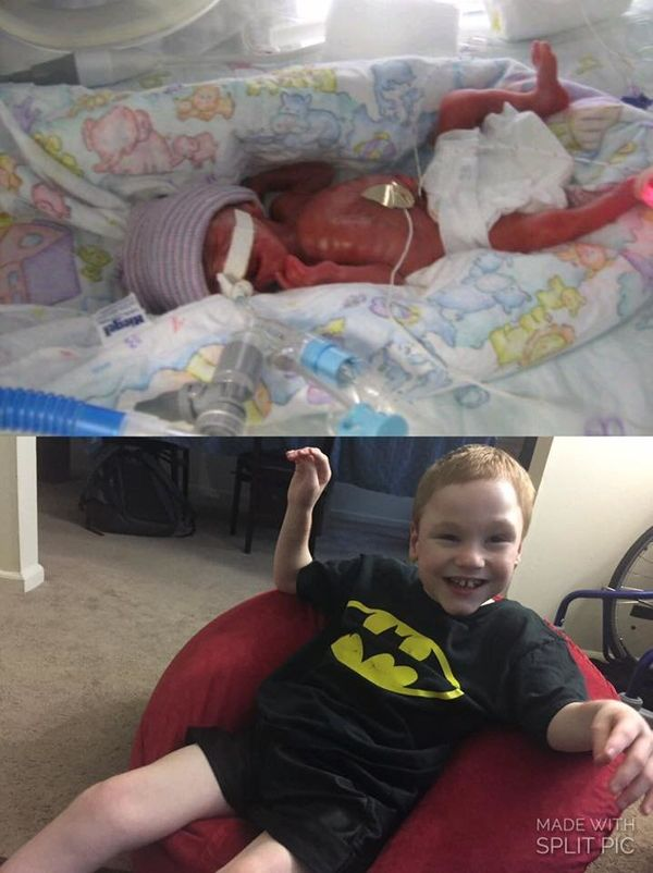 """My 7-year-old, born at 26 weeks, weighed 1 pound, 3 ounces."""