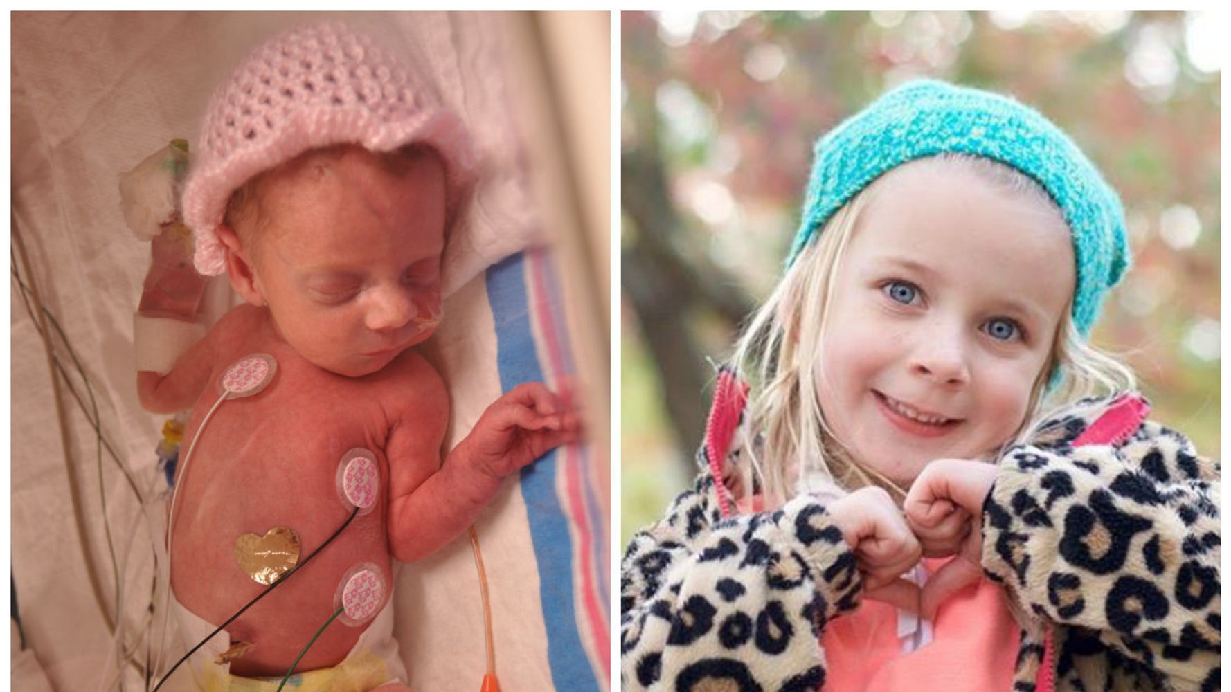 Photos Of Premature Babies Then And Now Show Their