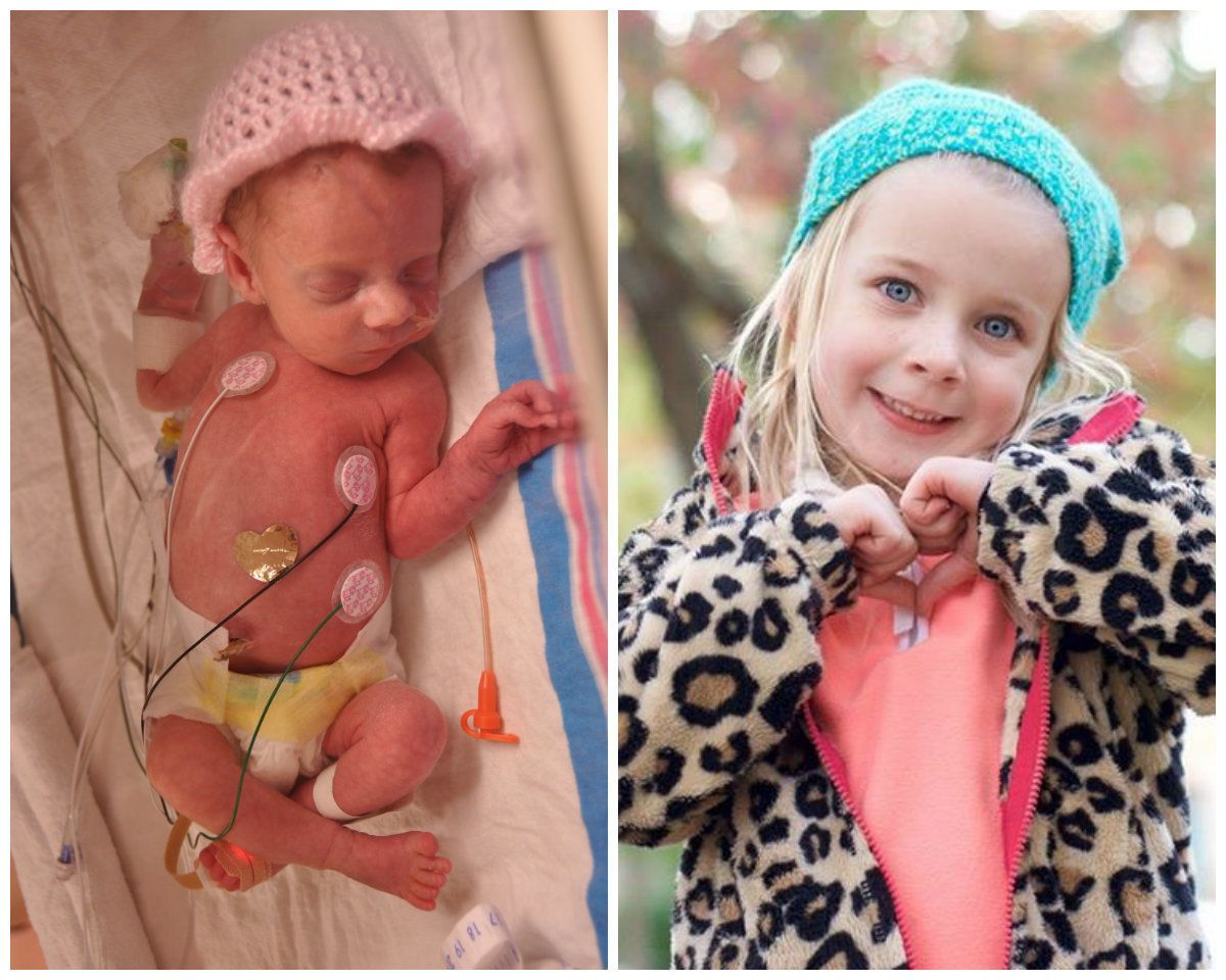 """Penelope was born at 34 weeks weighing 3 pounds, 9 ounces. I had preeclampsia and was induced. She was in the NICU for three"
