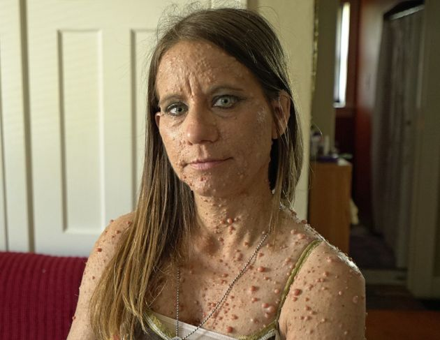 Rare skin disease leaves woman covered in almost 6000 tumours caters news libby huffer has been left covered in thousands of small tumours publicscrutiny Choice Image
