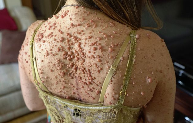 Rare Skin Disease Leaves Woman Covered In Almost 6,000 Tumours