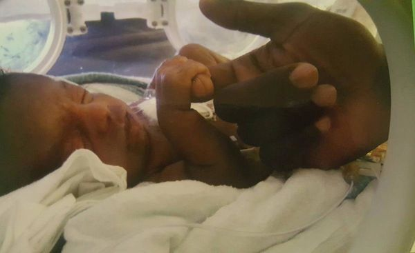 """""""This is my daughter Patty. She was 7 weeks early. Here she is holding on to her daddy's finger while laying inside the incub"""