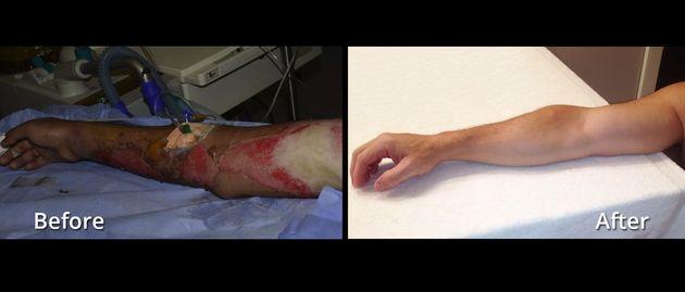 This Astonishing 'SkinGun' Sprays New Skin Onto Burns And Heals