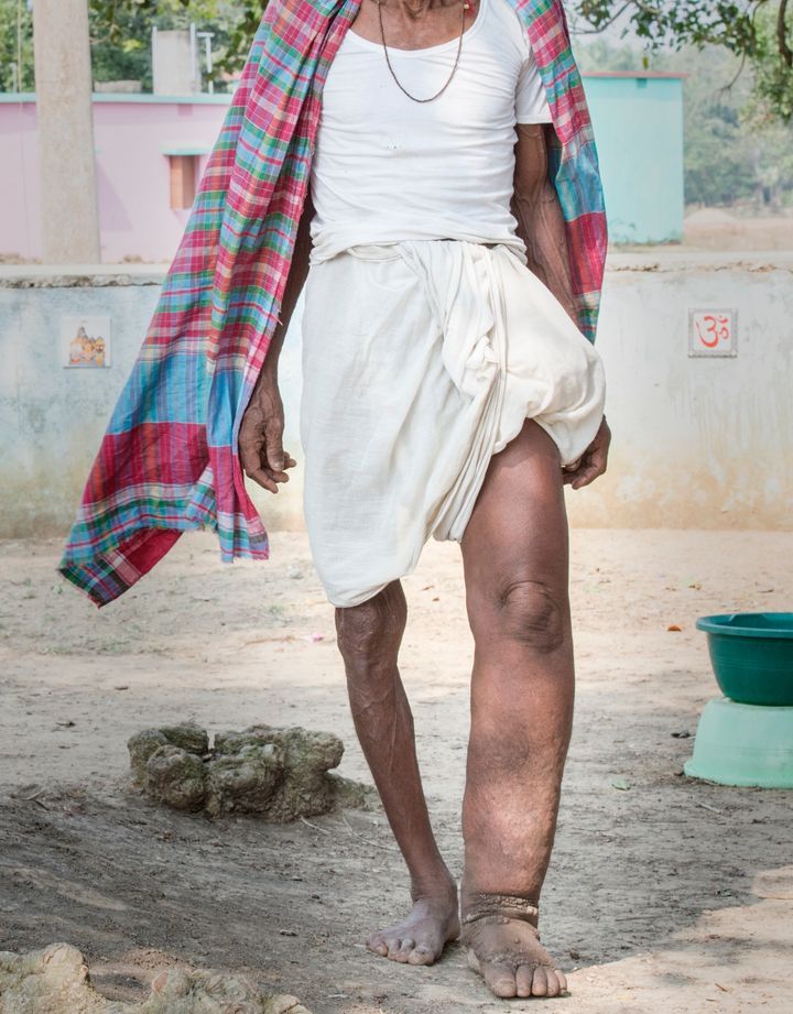 A man in India displaying symptoms of lymphatic filariasis, commonly known as elephantiasis, a neglected tropical disease that causes skin and tissue swelling.