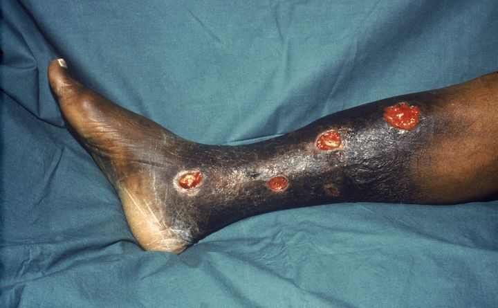 Yaws is an infection of the skin, bones and joints caused by bacteria. The photo here shows yaws affecting a patient's tibia.