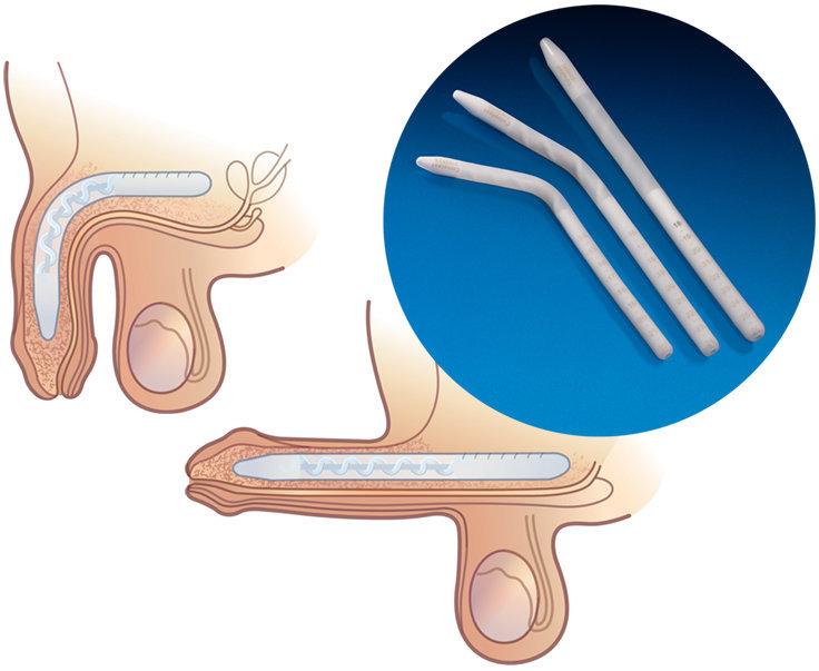 attachment Male prosthetic penis
