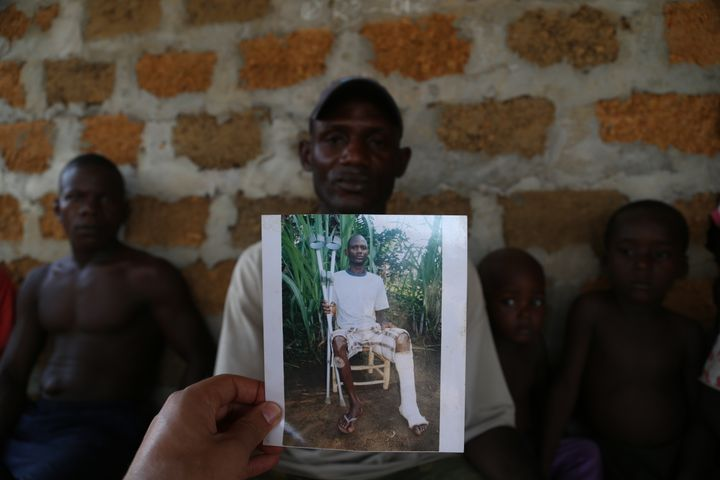 <p>Injured worker with a photo of his injuries</p>