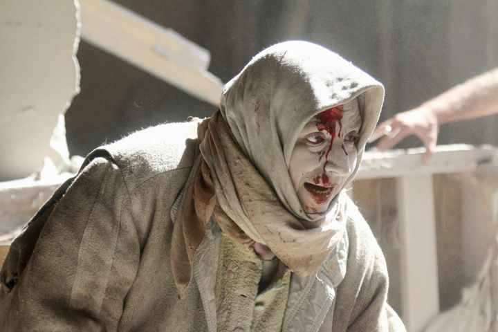 A woman who was injured during the siegeofAleppo.