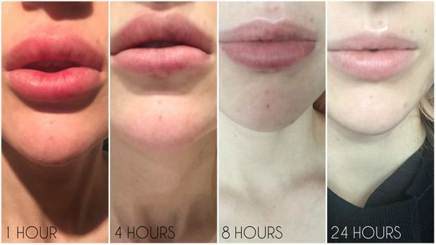 Lip Filler Removal Guide: From How Hyaluronidase Works, To