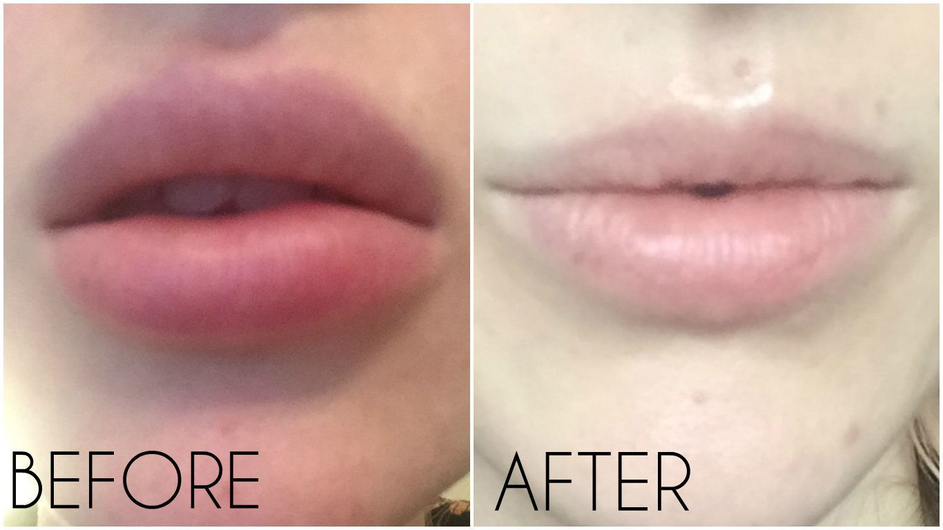 This Is How To Dissolve Lip Fillers