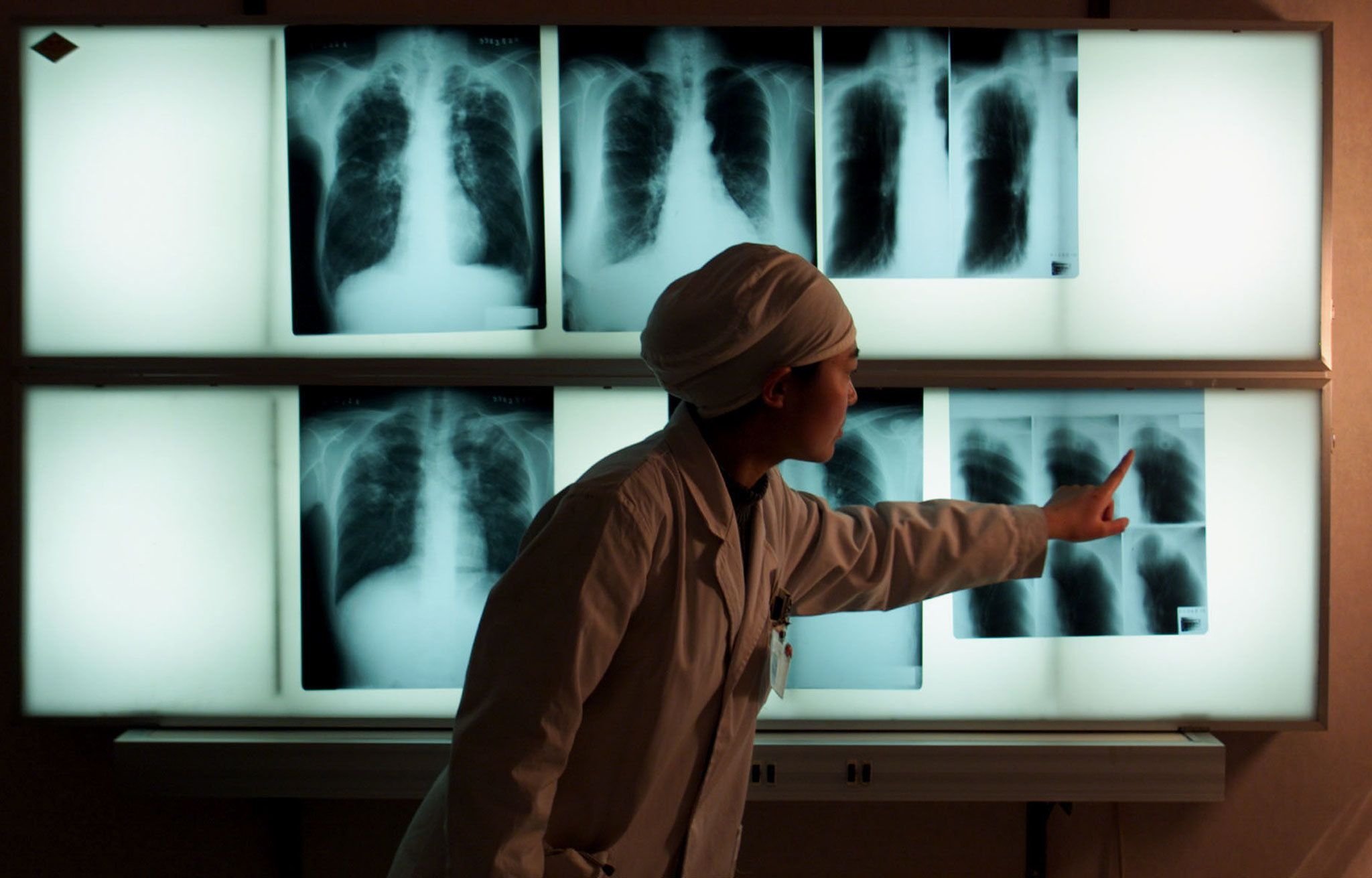 A Chinese doctor examines an x-ray of a tuberculosis patient at the Beijing Tuberculosis Hospital March 18. Tuberculosis remains the most deadly infectious disease in China accounting for more than 250,000 deaths each year. China, which has more than six million tuberculosis patients who are mainly from rural areas, has been working closely with the World Bank and World Health Organisation to control the disease. March 24 marks the World Tuberculosis Day. Picture taken 18MAR99.  ASW/DL/ME