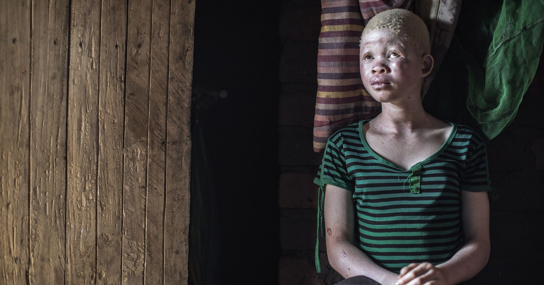 Attacks On Albinos Grow In Malawi As Body Parts Are Sold