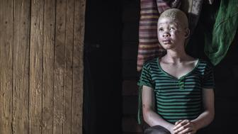 Catherine Amidu , a 12-year-old Malawian albino girl, sits in her home, in the traditional authority area of Nkole, Machinga district, on April 17, 2015. Six albinos have been killed in the poor southern African nation since December, according to the Association of Persons with Albinism in Malawi. AFP PHOTO / GIANLUIGI GUERCIA        (Photo credit should read GIANLUIGI GUERCIA/AFP/Getty Images)