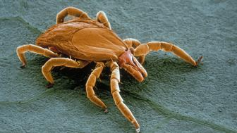 Colorized Scanning Electron Micrograph (SEM) of a deer tick (Ixodes dammini), a vector of Lyme disease.