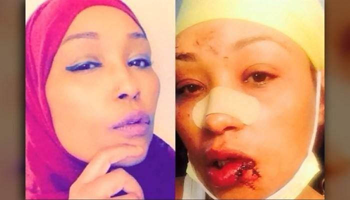 Asma Jama before the October 2015 attack (left) and after (right)