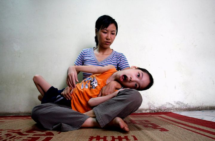 Pham Duc Duy is cradled in the arms of his mother in Hanoi in 2007. Vietnamese doctors believe Duy, whose grandfather served in the Vietnam War, is a victim of exposure to dioxin passed down the generations.