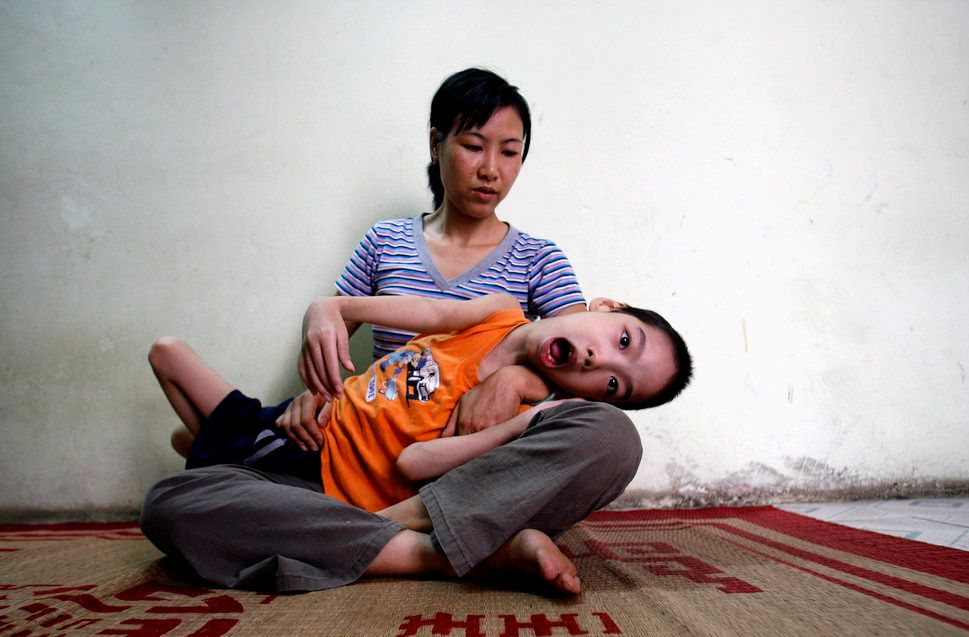 Pham Duc Duy is cradled in the arms of his mother in Hanoi in 2007. Vietnamese doctors believe Duy, whose grandfather se