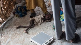 TOPSHOT - This photo taken on June 30, 2016 shows a young boy suffering from severe acute malnutrition lying on the ground at one of the Unicef nutrition clinics, in the Muna informal settlement, which houses nearly 16,000 IDPs (internally displaced people) in the outskirts of Maiduguri capital of Borno State, northeastern Nigeria.    Nigeria has pledged to do more to tackle food shortages among people made homeless by Boko Haram, as the United Nations warned some 50,000 children could starve to death this year in one northeastern state alone. / AFP / STEFAN HEUNIS        (Photo credit should read STEFAN HEUNIS/AFP/Getty Images)